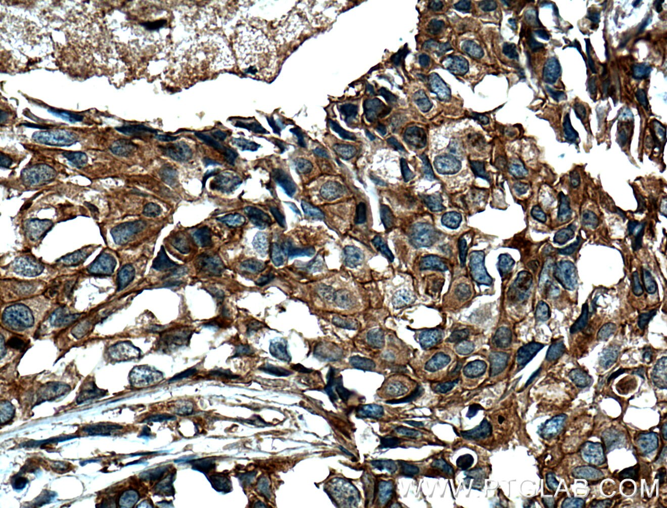 IHC staining of human breast cancer using 66389-1-Ig