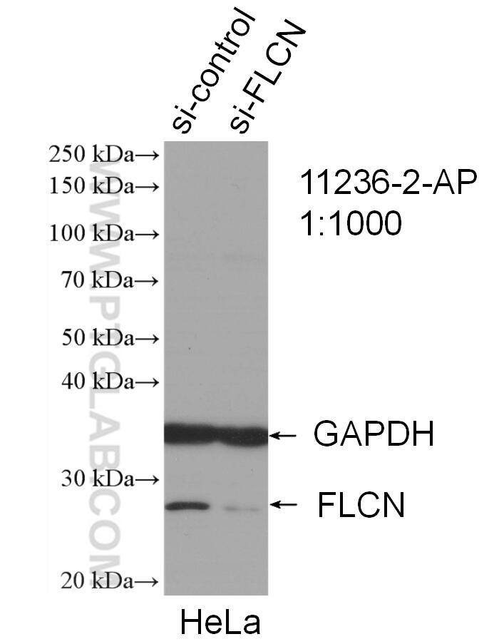WB analysis of HeLa using 11236-2-AP