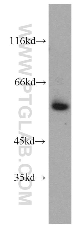 VEGFR-1/FLT-1