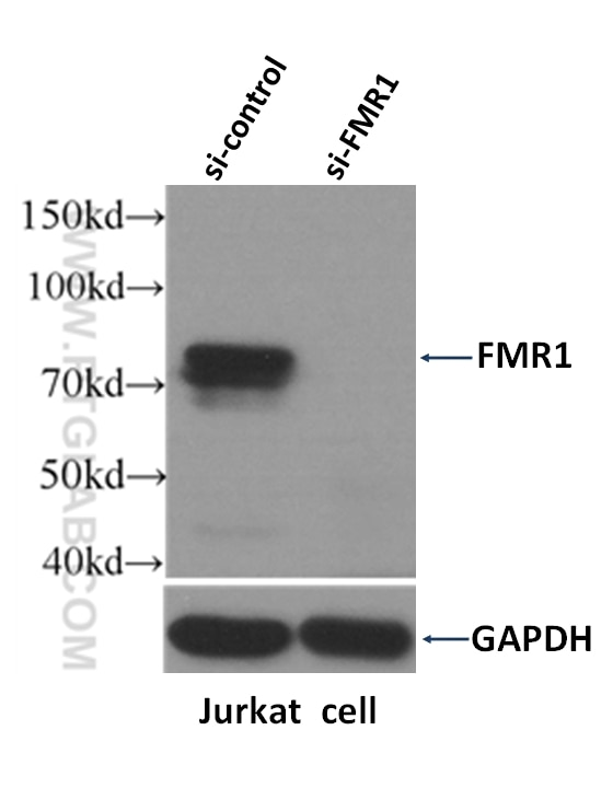 Western Blot result of FMR1 antibody (13755-1-AP, 1:1500) with si-Control and si-FMR1 transfected Jurkat cells. FMR1 gene has many isoforms with MW 59-72 kDa.