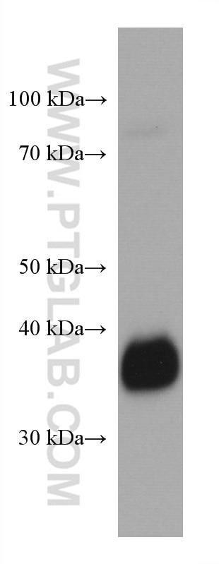 WB analysis of human milk using 60307-1-Ig