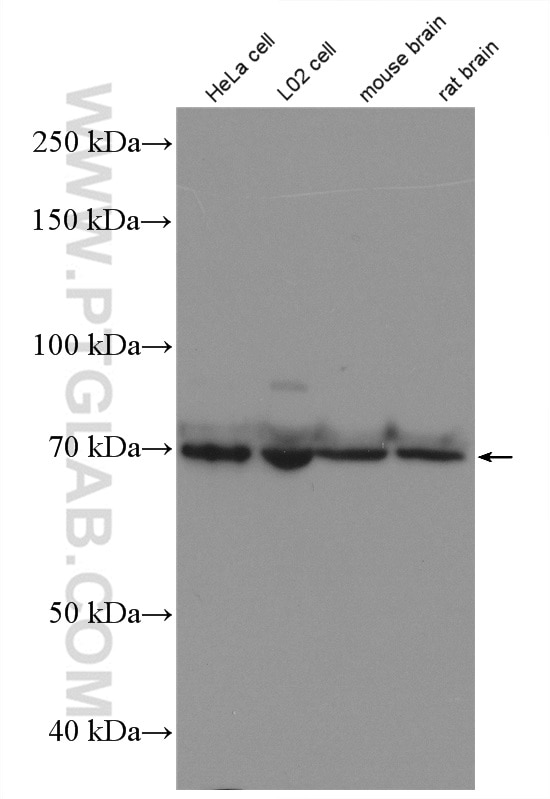 WB analysis of HeLa using 18592-1-AP