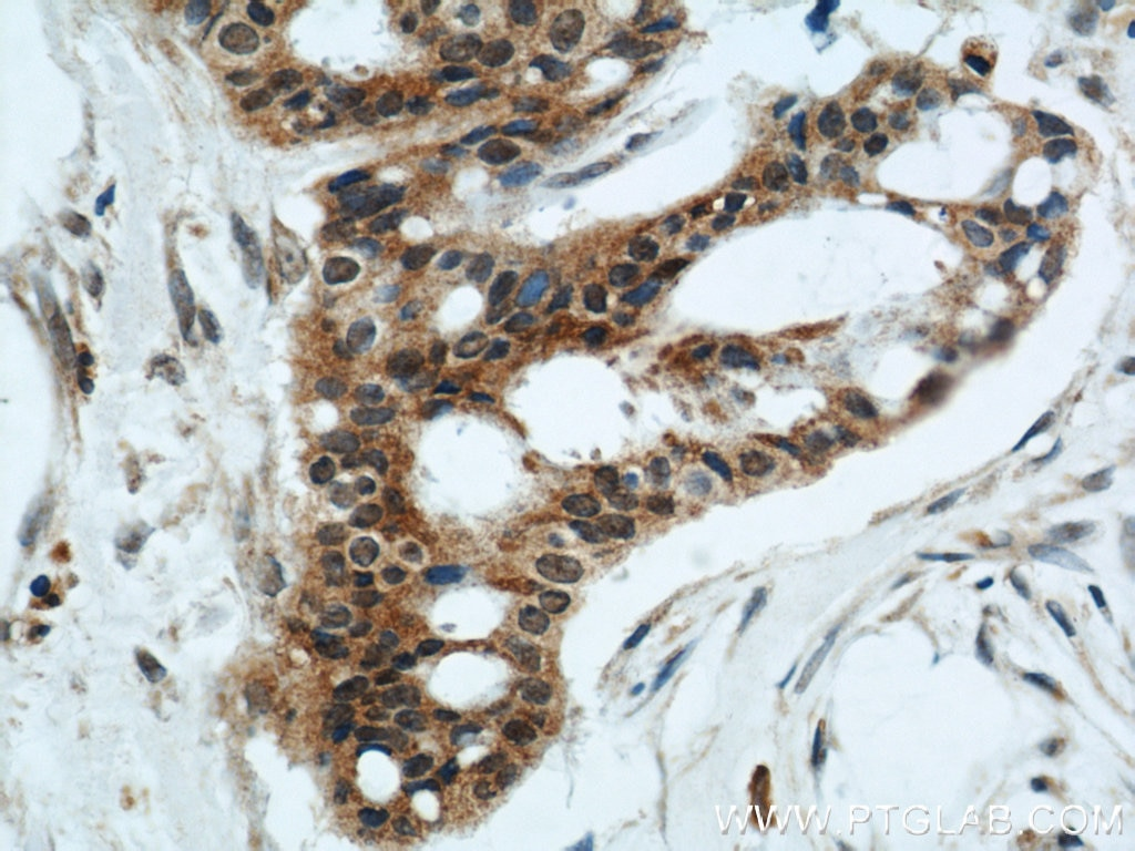 IHC staining of human breast cancer using 10849-1-AP