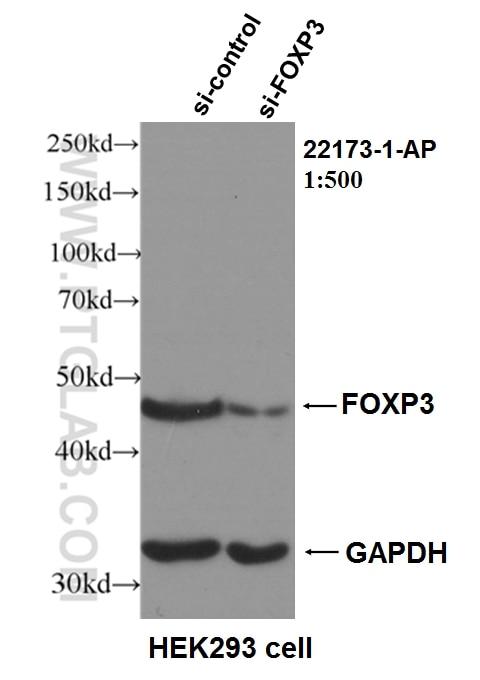 WB analysis of HEK-293 using 22173-1-AP