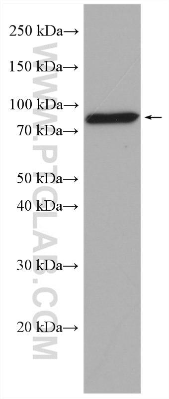 WB analysis of rat ovary using 22665-1-AP