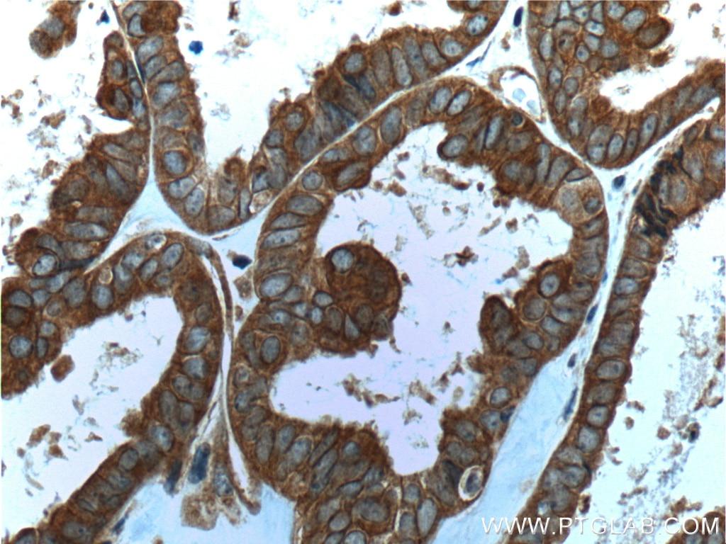 IHC staining of human ovary tumor using 60060-1-Ig