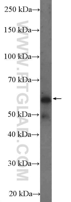 FTO Polyclonal antibody