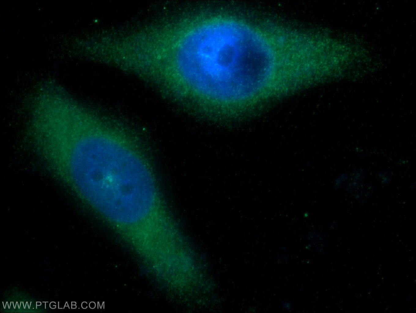 IF Staining of HeLa using 17185-1-AP