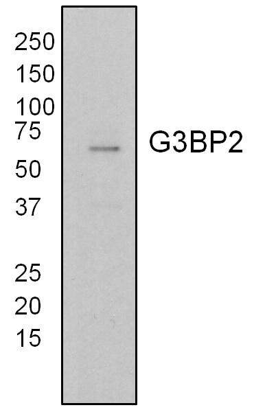 WB analysis of T47D cells using 16276-1-AP
