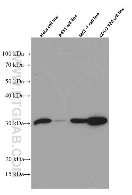 HeLa, A431, MCF-7, and COLO 320 cells were subjected to SDS PAGE followed  by western blot with 60207-1-Ig (Galectin-3 antibody) at dilution of 1:2500  ...