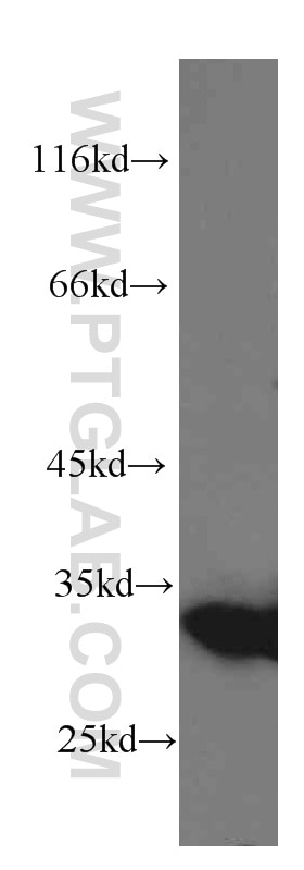 HeLa cells were subjected to SDS PAGE followed by western blot with 60207-1-Ig(Galectin-3  antibody) at dilution of 1:1000 incubated at room temperature for ...