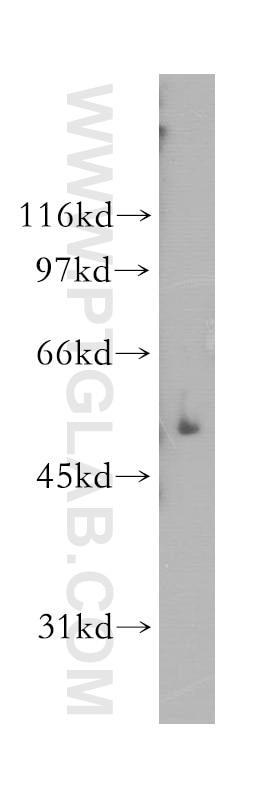 human placenta tissue were subjected to SDS PAGE followed by western blot  with 12887-1-AP(GALC antibody) at dilution of 1:600 incubated at room  temperature ...