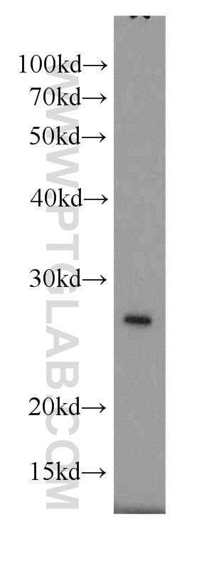 WB analysis of mouse liver using 10880-1-AP
