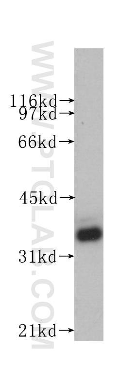 60004-1-Ig;Raji cells
