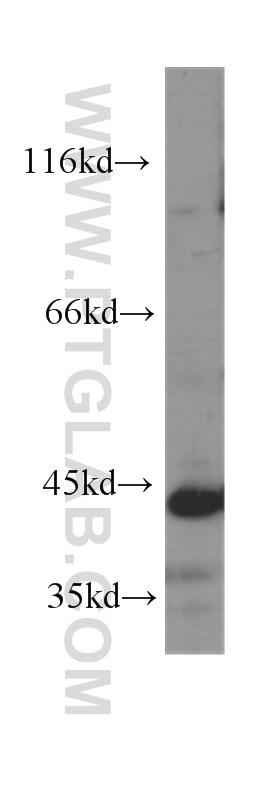 GATA1 Monoclonal antibody