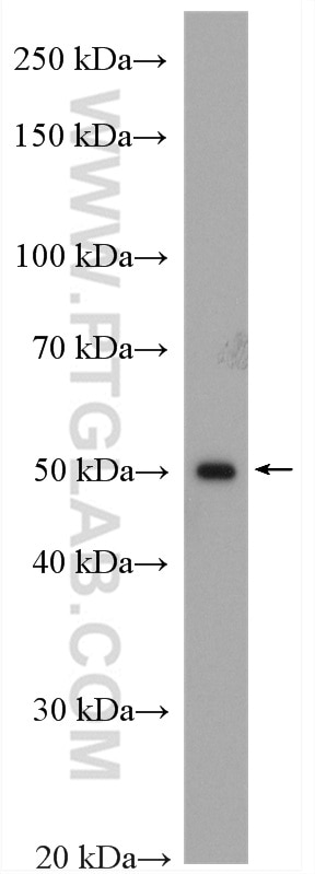 mouse liver tissue were subjected to SDS PAGE followed by western blot with  19666-1-AP (GCK antibody) at dilution of 1:600 incubated at room  temperature for ...
