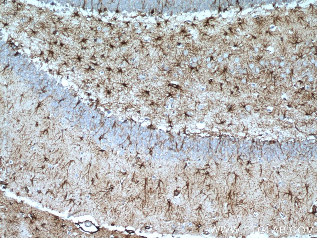IHC staining of rat brain using 16825-1-AP