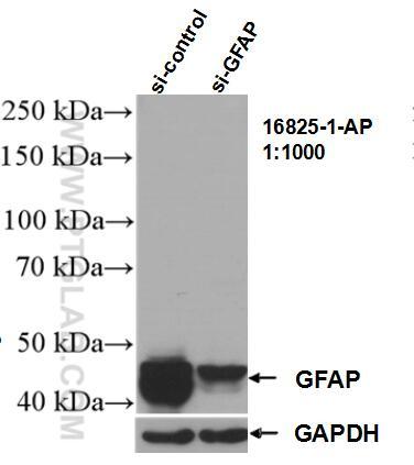 WB analysis of U-251 using 16825-1-AP