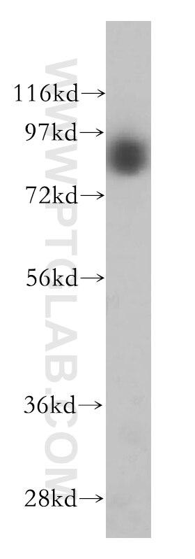 GGCX Polyclonal antibody