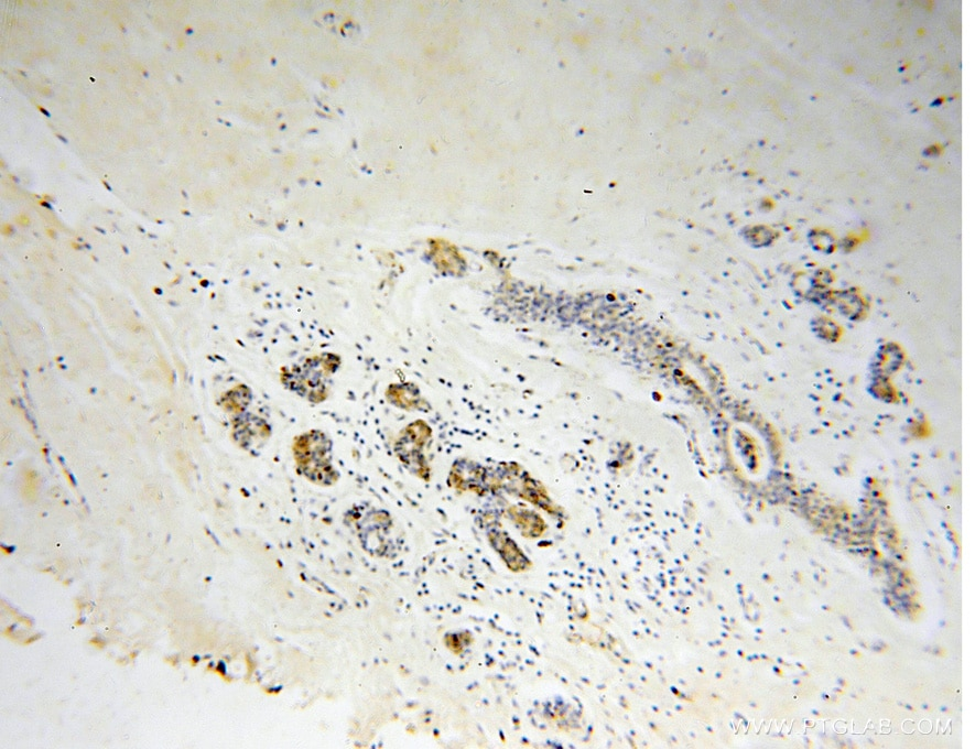 IHC staining of human colon cancer using 10450-1-AP