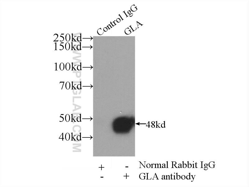 IP experiment of HEK-293 using 15428-1-AP