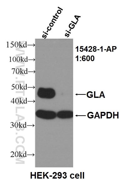 Le jeu du nombre en image... (QUE DES CHIFFRES) - Page 37 GLA-Antibody-15428-1-AP-WB-104165