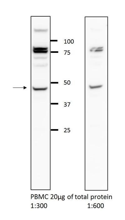 WB analysis of PBMC cells using 13831-1-AP