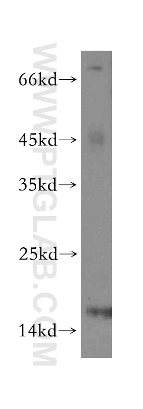 WB analysis of A549 using 13381-1-AP