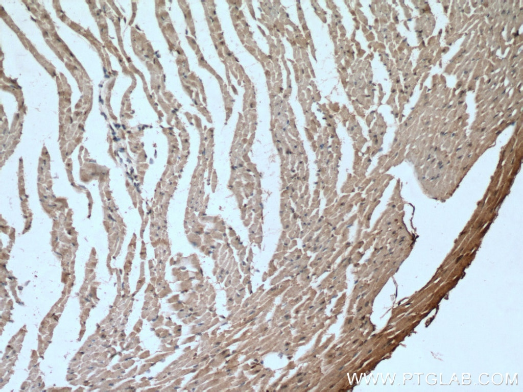 IHC staining of mouse heart using 66846-1-Ig