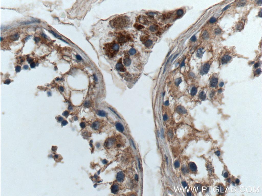 IHC staining of human testis using 13927-1-AP