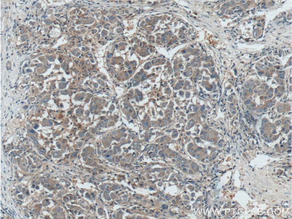 IHC staining of human liver cancer using 10081-1-AP