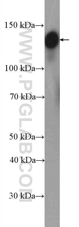 WB analysis of HEK-293 using 11308-1-AP