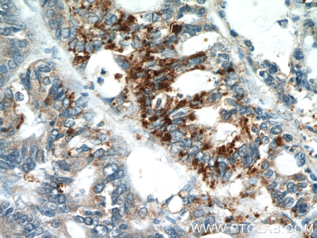 IHC staining of human colon cancer using 19112-1-AP