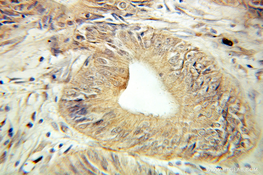 IHC staining of human colon cancer using 10598-1-AP