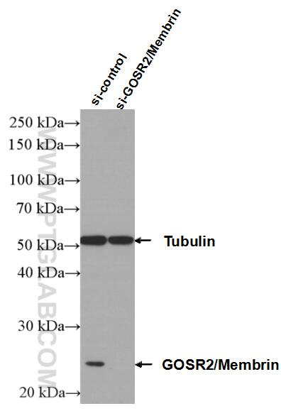 WB analysis of Jurkat using 12095-1-AP