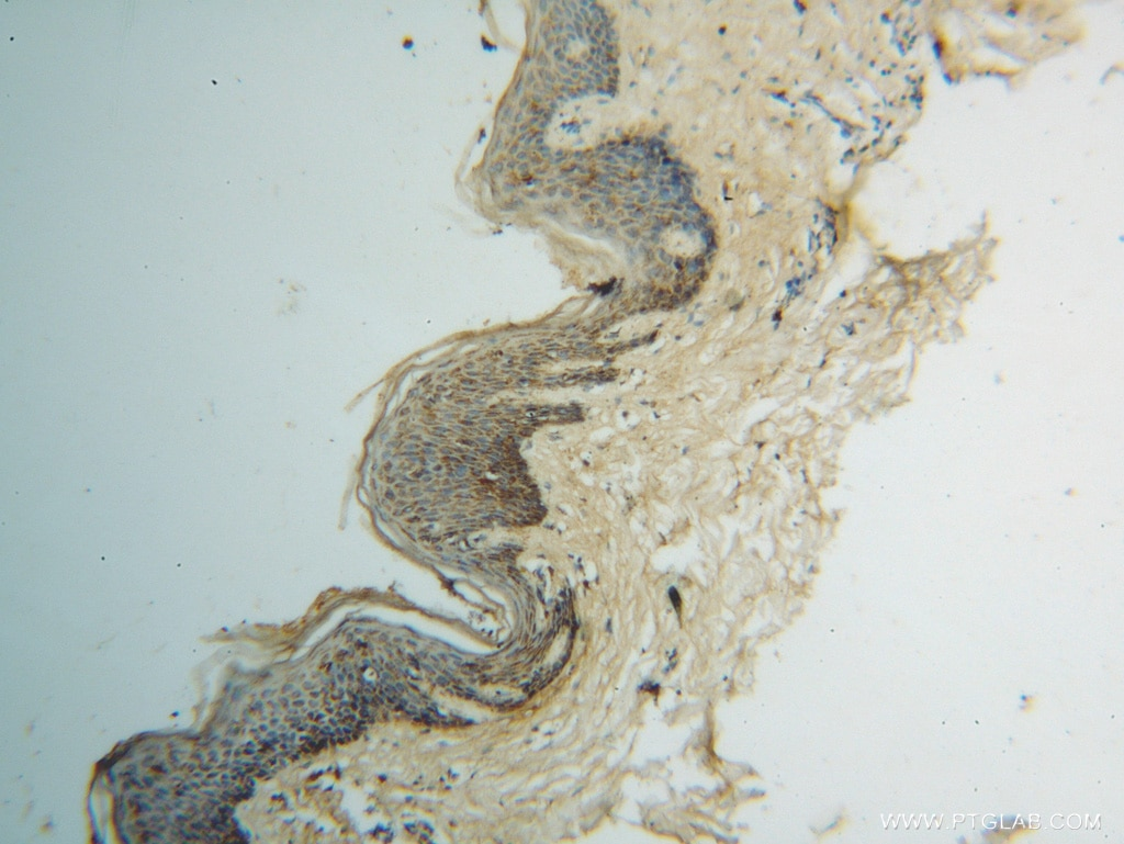 IHC staining of human skin cancer using 14800-1-AP