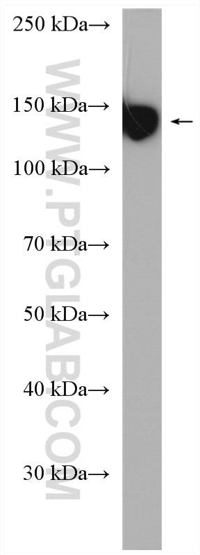 WB analysis of human peripheral blood platelets using 12860-1-AP