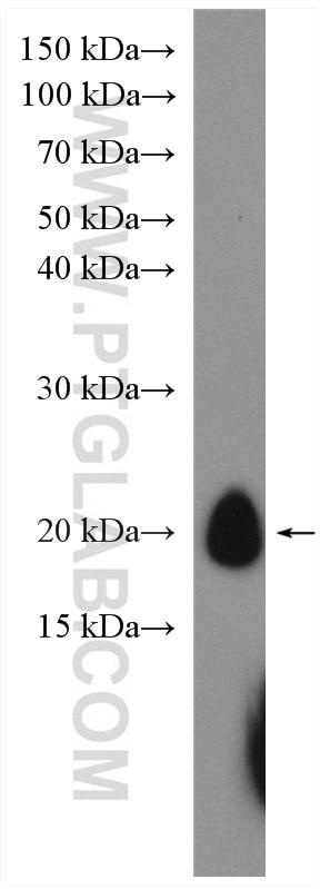 WB analysis of human peripheral blood platelets using 14564-1-AP