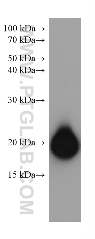 WB analysis of human peripheral blood platelets using 67271-1-Ig