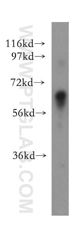 Glypican 3 Polyclonal antibody