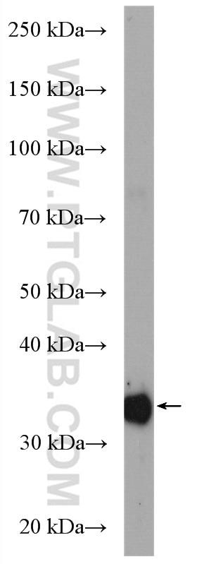 WB analysis of rat liver using 27943-1-AP