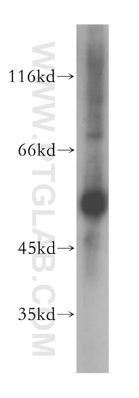 GPT/ ALT1 Polyclonal antibody