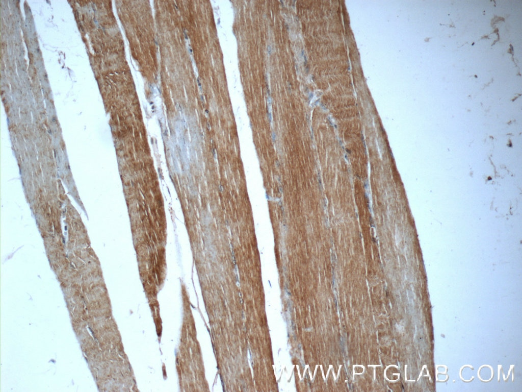 IHC staining of human skeletal muscle using 16757-1-AP