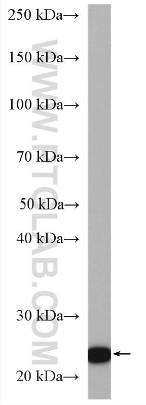 WB analysis of U-251 using 16846-1-AP
