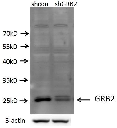 GRB2 Polyclonal antibody