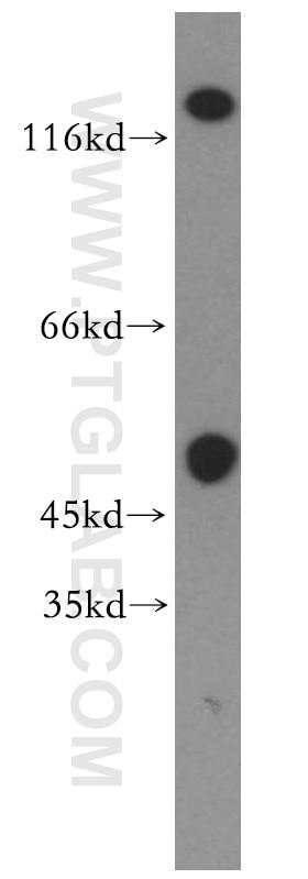 GRIK2 Polyclonal antibody