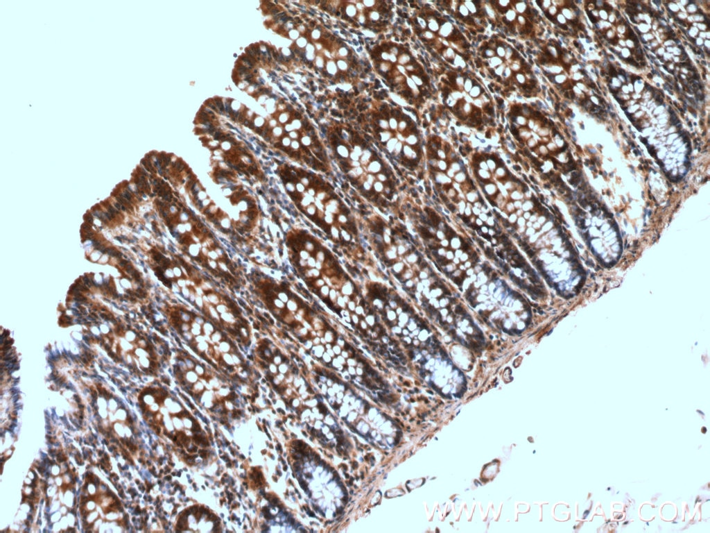 IHC staining of human colon using 26789-1-AP