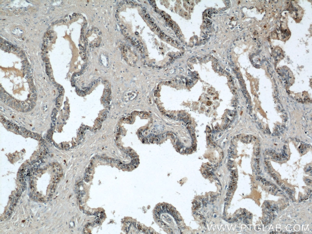 IHC staining of paraffinembedded human prostate hyperplasia using GSK3B antibody (22104-1-AP) at a dilution of 1:50 (10x objective)
