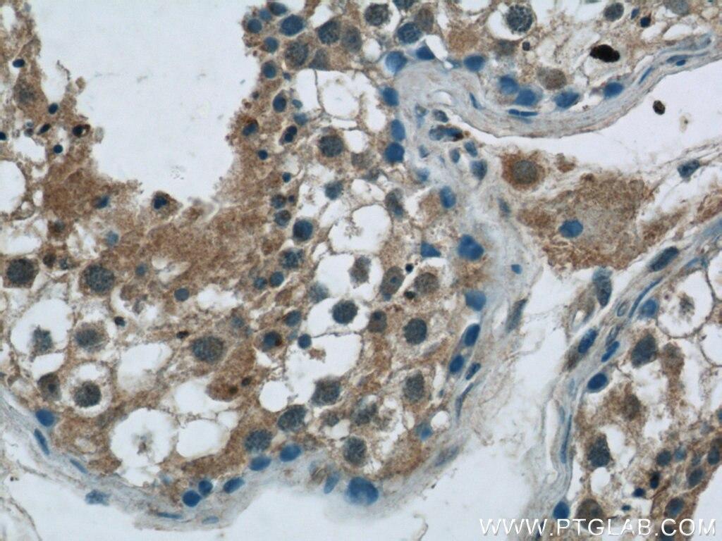 IHC staining of human testis using 24198-1-AP