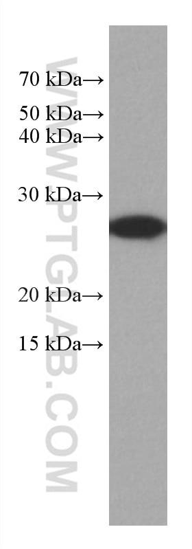 WB analysis of HepG2 using 67634-1-Ig